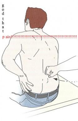 photo of back pain